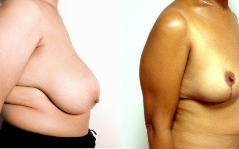 Réduction mammaire de 800 grammes. Vue de profil