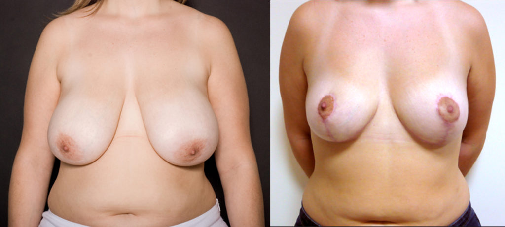 Réduction mammaire de 300 grammes, vue de face
