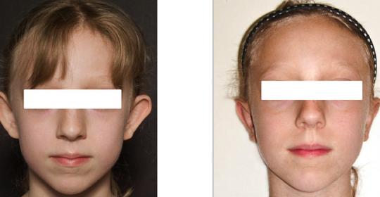 Photos oreilles décollées avant / après chirurgie. De face