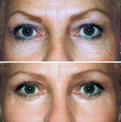 Chirurgie des paupières et lipofilling des pommettes, photos avant et après