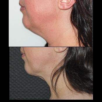 Liposuccion du cou, vue de profil