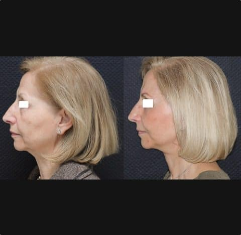 Lifting cervico-facial double plan. Vue de profil.