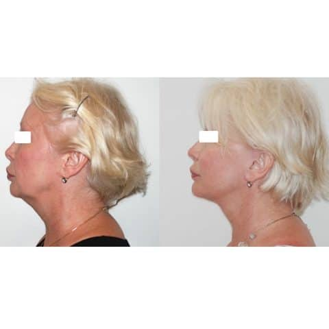 Lifting cervico-facial double plan. Vue de profil