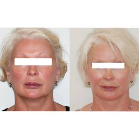 Lifting cervico-facial double plan. Vue de face