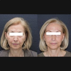 Lifting cervico-facial double plan. Vue de face.