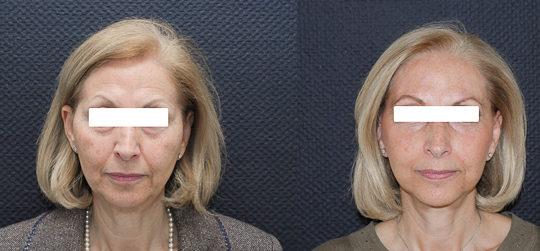 Résultat d'un lifting cervico-facial. Avant / Après. Vue de face