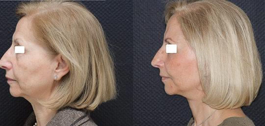 Lifting cervico-facial double plan. Vue de profil.