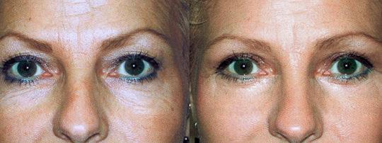 Chirurgie des paupières et lipofilling des pomettes, photos avant et après