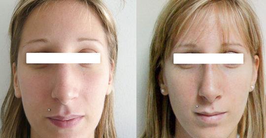 Rhinoplastie 2 voie ouverte : vue de face