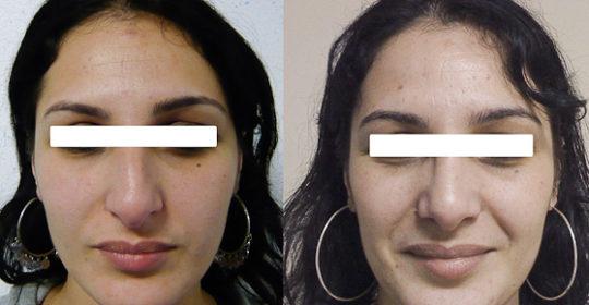 Résultat rhinoplastie 1 voie fermée vue de Face