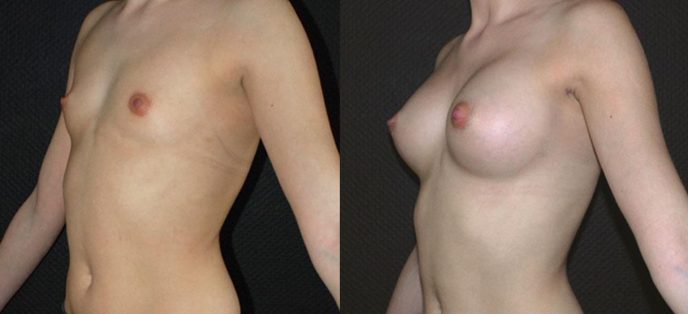 implant mammaire anatomique 300 cc haute projection résultat PROFIL