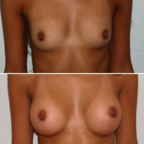 implant mammaire rond 335 cc haute projection résultat FACE