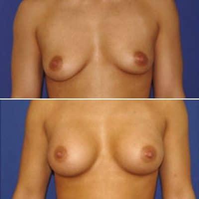 implant mammaire anatomique 320 cc haute projection résultat FACE