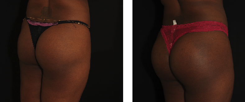 Pose d'implants fessiers de marque Polytech. Photo avant / après, vue 3/4