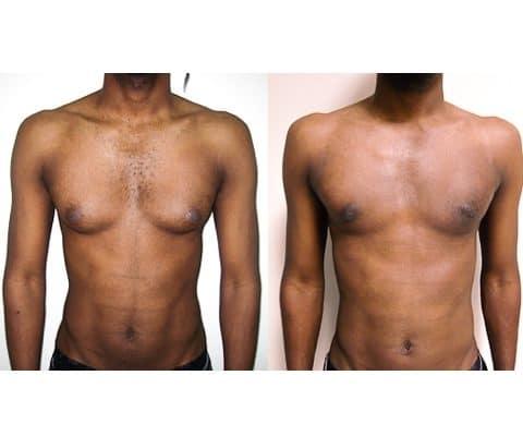 Gynécomastie avant / après. Vue de face