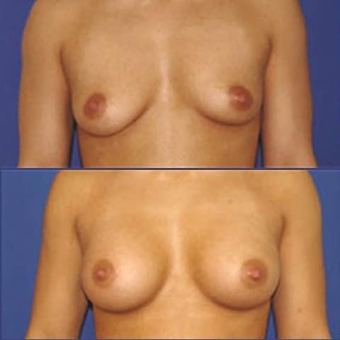 Avant et Après chirurgie mammaire
