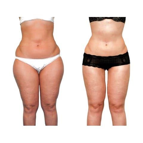 Photo avant et après chirurgie de la silhouette