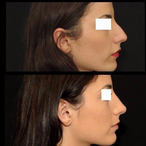 Photos avant et après chirurgie du visage